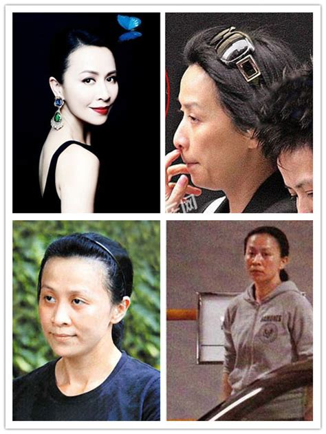 women aging plastic surgery hong kong picture 2