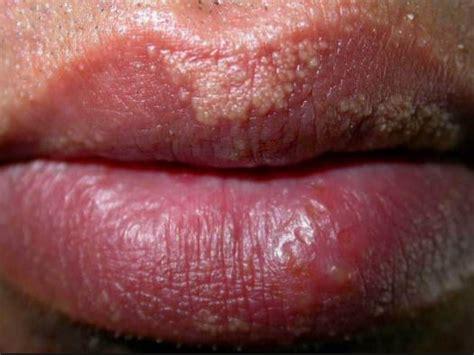 what causes reoccuring pimpes of the upper lip picture 5