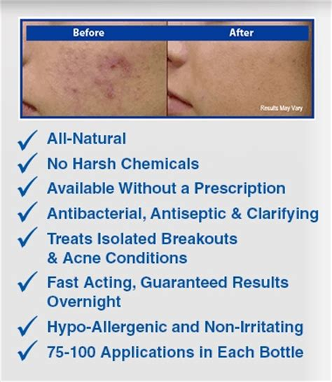 where to buy emuaid acne solution in south picture 1