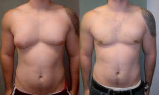 breast enlargement for men picture 6
