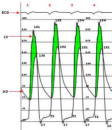 Aortic stenosis blood pressure readings picture 17