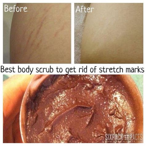 body wash to decrease stretch marks picture 1