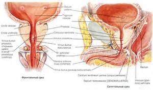 Prostate cancer of the apex picture 5