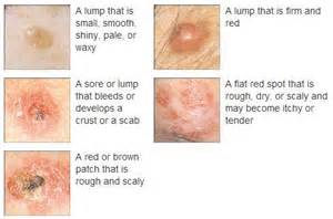 skin cancer systoms picture 7