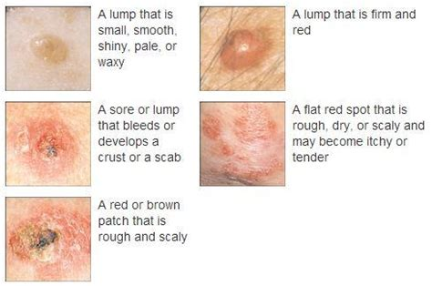 basal skin cancer symptoms picture 3