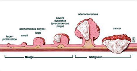 colo cancer colon trol test natural picture 3