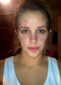 nofap acne picture 3