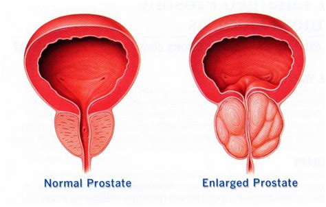 prostatic hypertrophy picture 7
