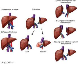 where is the most liver transplants done picture 12