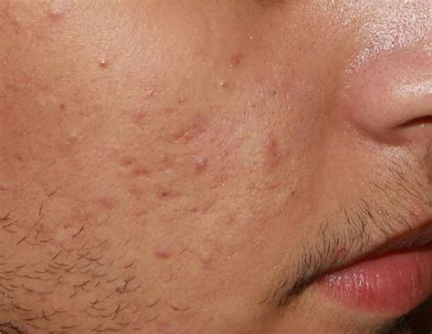 Home remedies for acne scarring picture 7