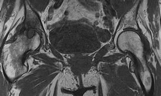degenerative joint disease picture 6