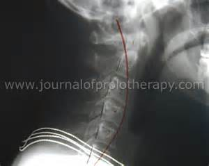 cervical muscle spasms picture 9