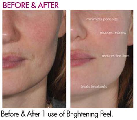 alchimie skin care picture 3