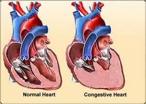 congestive heart failure diet picture 3