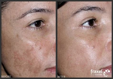 skin care for melasma picture 5