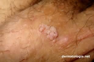 genital wart treatment locations chicago picture 11
