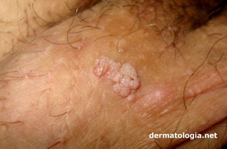 genital warts male picture 2