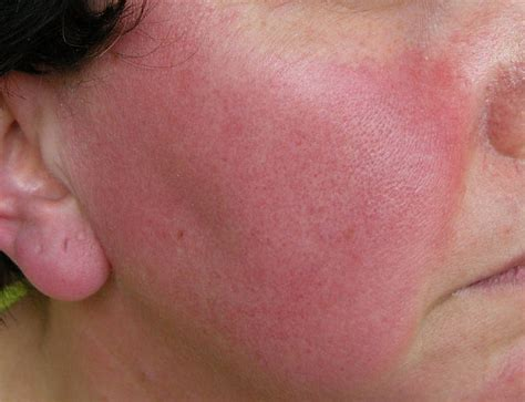 flaky skin and rosacea picture 2