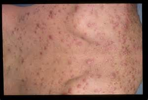 aids std's herpes syphillis and hiv picture 9