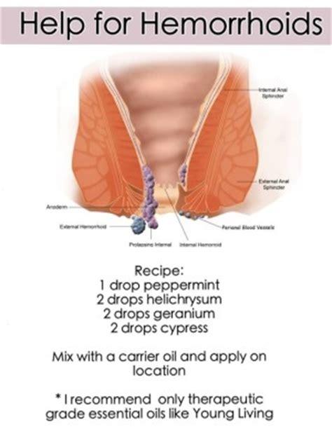 hc treatment of hemorrhoids picture 13