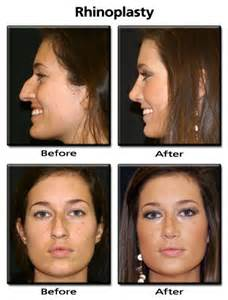 advanced laser and skin center picture 13