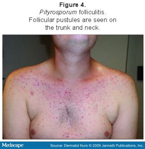 pityrosporum folliculitis treated with threelac? picture 11