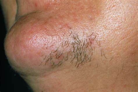 hair on face genital disturbances for urdu picture 7