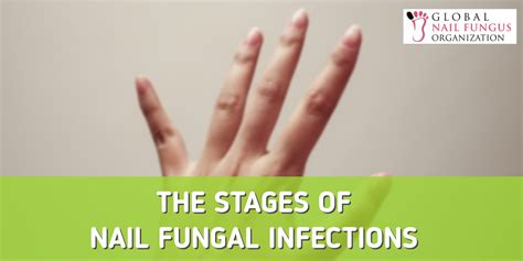stages of nail fungus picture 7