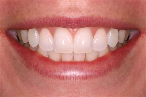 smile teeth picture 1