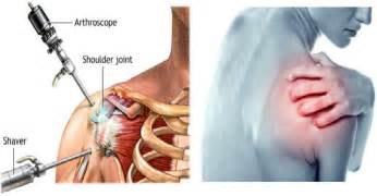 soothe joint pain picture 13