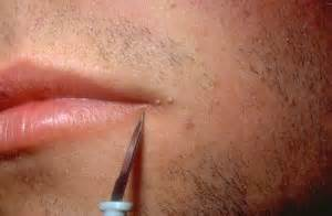human papillomavirus leczenie picture 2