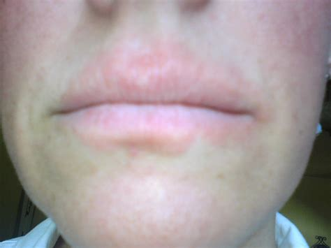 rash around lips picture 2