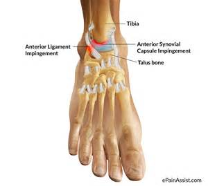 ankle joint pain picture 19