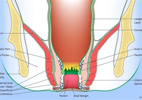 colon infection picture 13