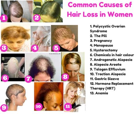 causes of body hair loss picture 5