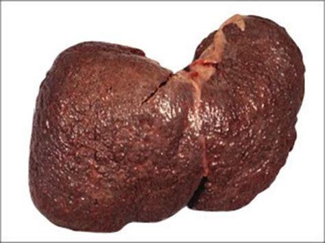 acute liver failure life expectancy picture 10