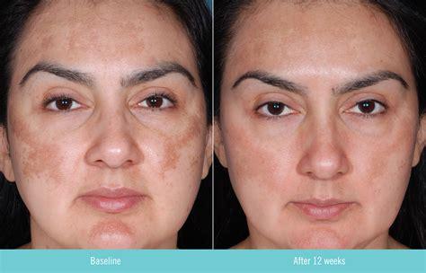 acne from sermorelin picture 10