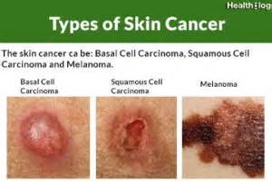 pictures of different types of skin cancers picture 4