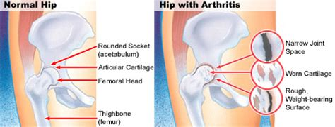 discribe pain in hip joint from oa picture 15