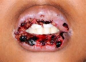 disease that cause the lip to turn pink picture 5