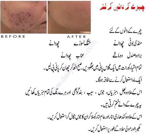 acne pimple treatement in urdu picture 2