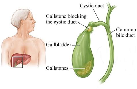 symptoms of gall bladder with gangrene infection picture 8