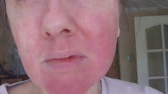pictures of hives on the face picture 1