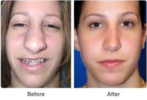 penoplasty before and after pictures picture 3