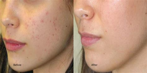 chemical pel acne treatment series picture 9