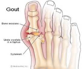 gout and liver function picture 1
