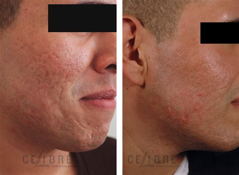 acne scar lasers in poland warsaw picture 8