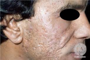 acne scars pattaya picture 2