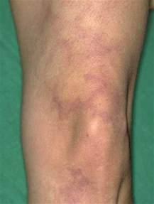 libido reticularis picture 3