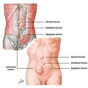 el sounds after abdominal surgery picture 2